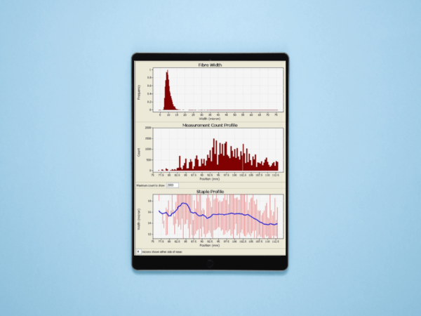 Tablet showing the FibreScan grapgh interface